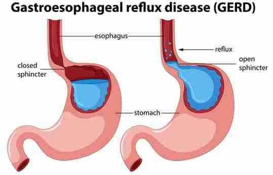 Gastroesophageal Reflux Disease GERD Stomach