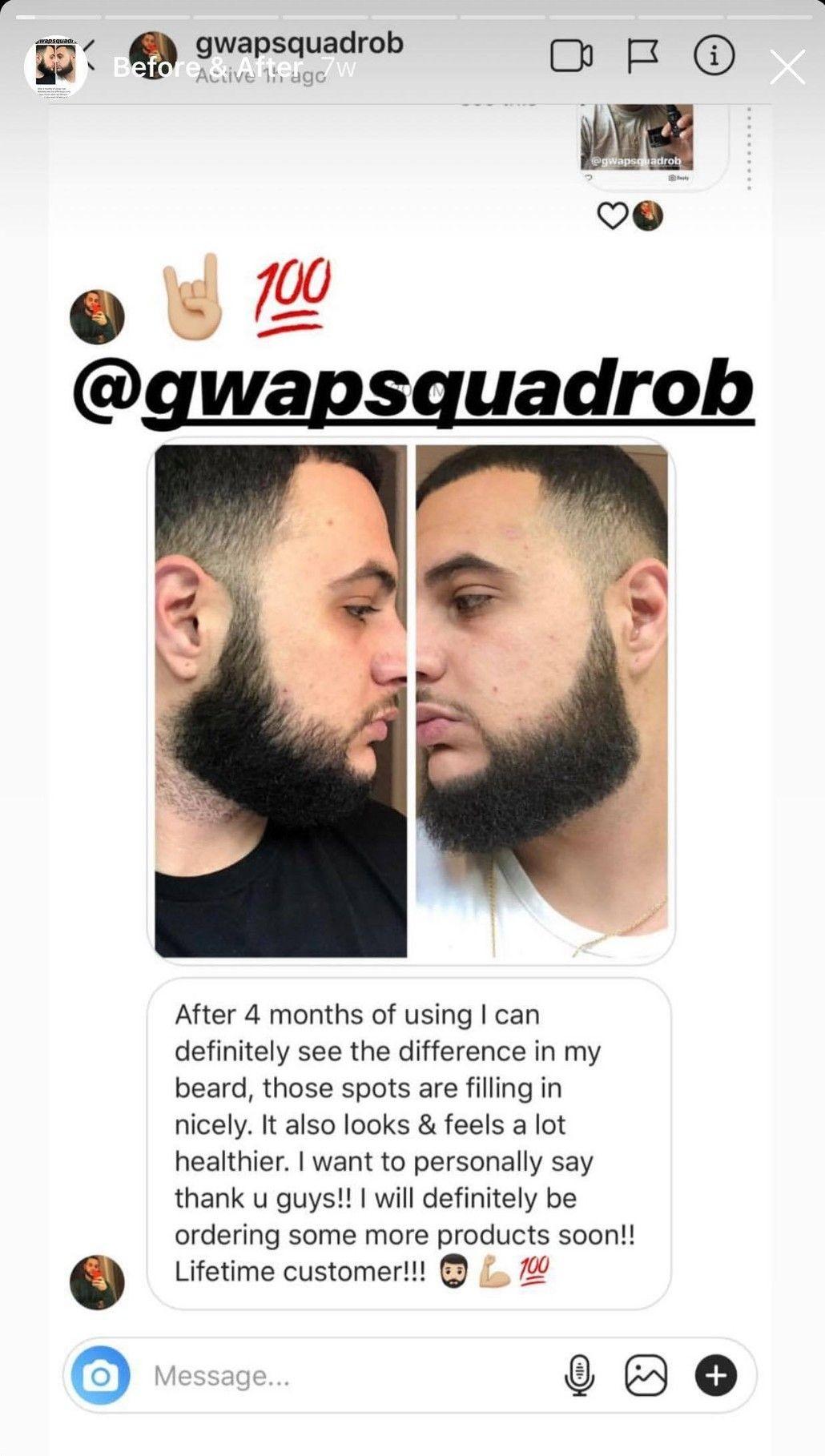 Beard Struggle Before & After