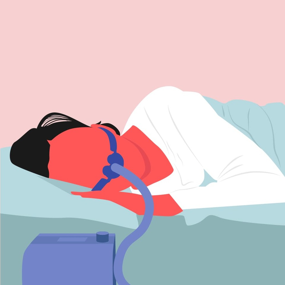 More drastic recommendations might include sleeping with a special apparatus or even having surgery to help open up restricted passageways. If snoring is linked to swollen throat muscles, your doctor may even prescribe inhaled steroids.