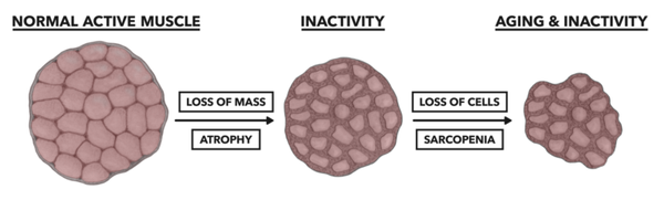 Normal Active Muscle Inactivity Aging Loss of Mass Atrophy Loss of Cells Sarcopenia