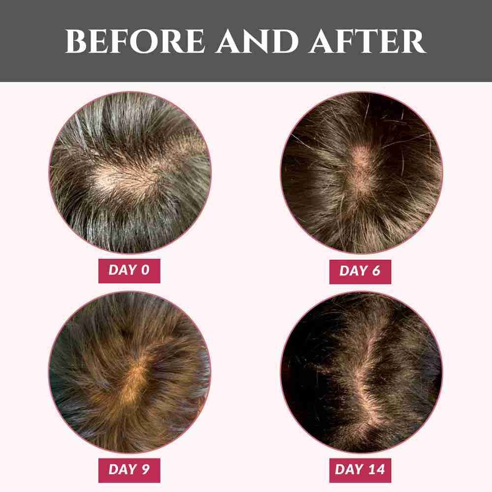 Four pictures showing progress of test subject over the course of 14 days with visible hair growth over bald spot.