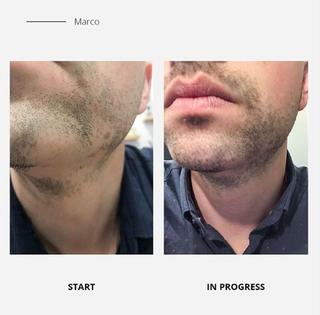 Natural Beard Oil | Beard Growth Kit | Beard Care | CGrooming | Beard Growth Oil | Organic Beard Oil | Beard Kit
