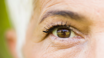 What causes wrinkles and remedies for getting rid of wrinkles