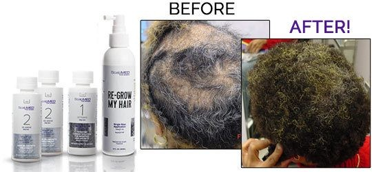 PATENTED HAIR REGROWTH SYSTEM FOR WOMEN