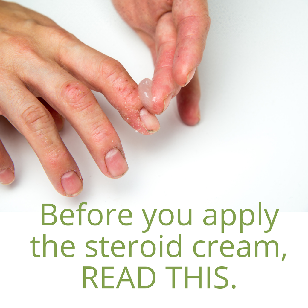steroids and eczema - what's the best treatment route