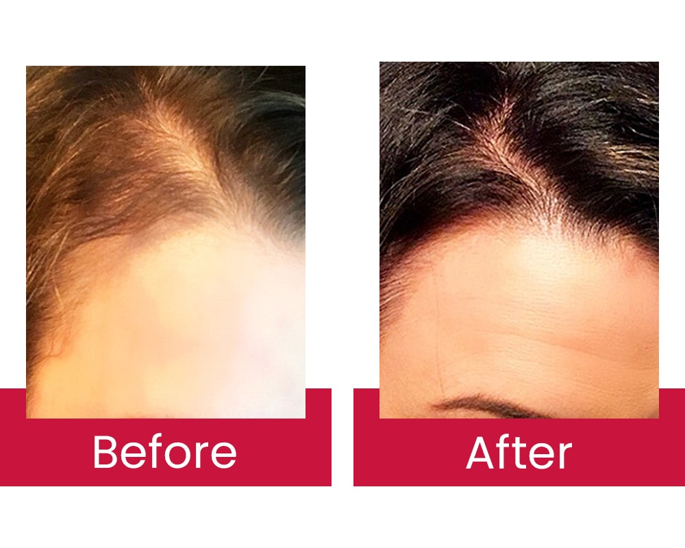 Image of before and after results using Hair Restoration Laboratories products