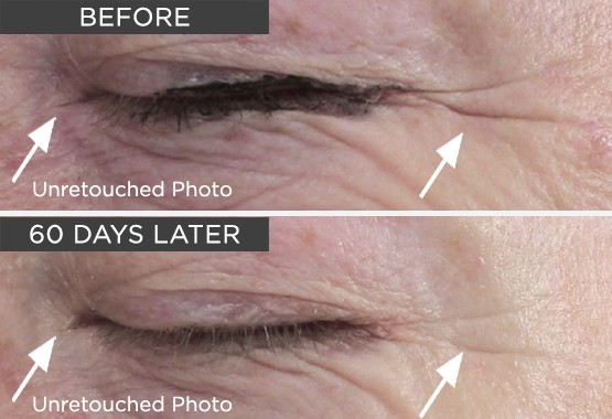 Needle-less Serum Before and After Picture