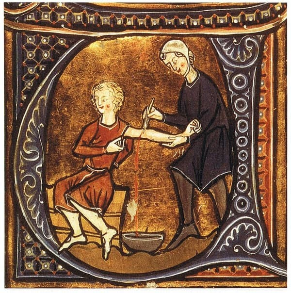 European Medieval Art Blood Letting