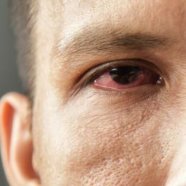 Dry Eye - Short Term Effect