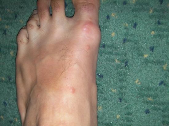 piqûres punaise pied