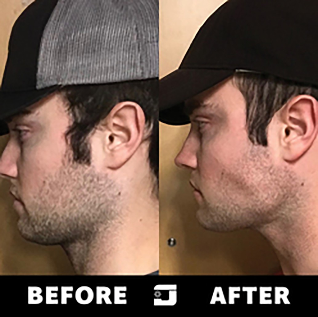 Jawzrsize - Create The Ultimate Jawline, Fitness 4 Your Face