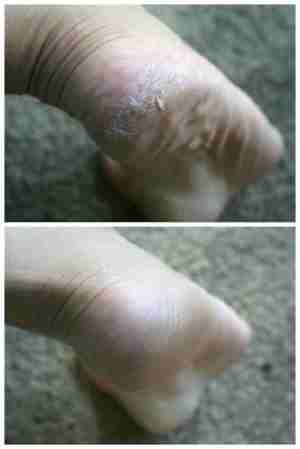 before and after heels lotion bar