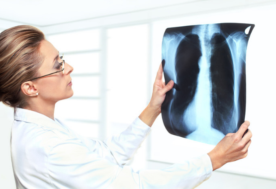 pulmonologist x ray healthy lungs quit smoking