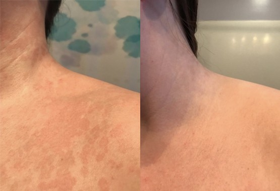 Before and after images of treatment with daily use of Naturasil's Tinea Versicolor Soap.