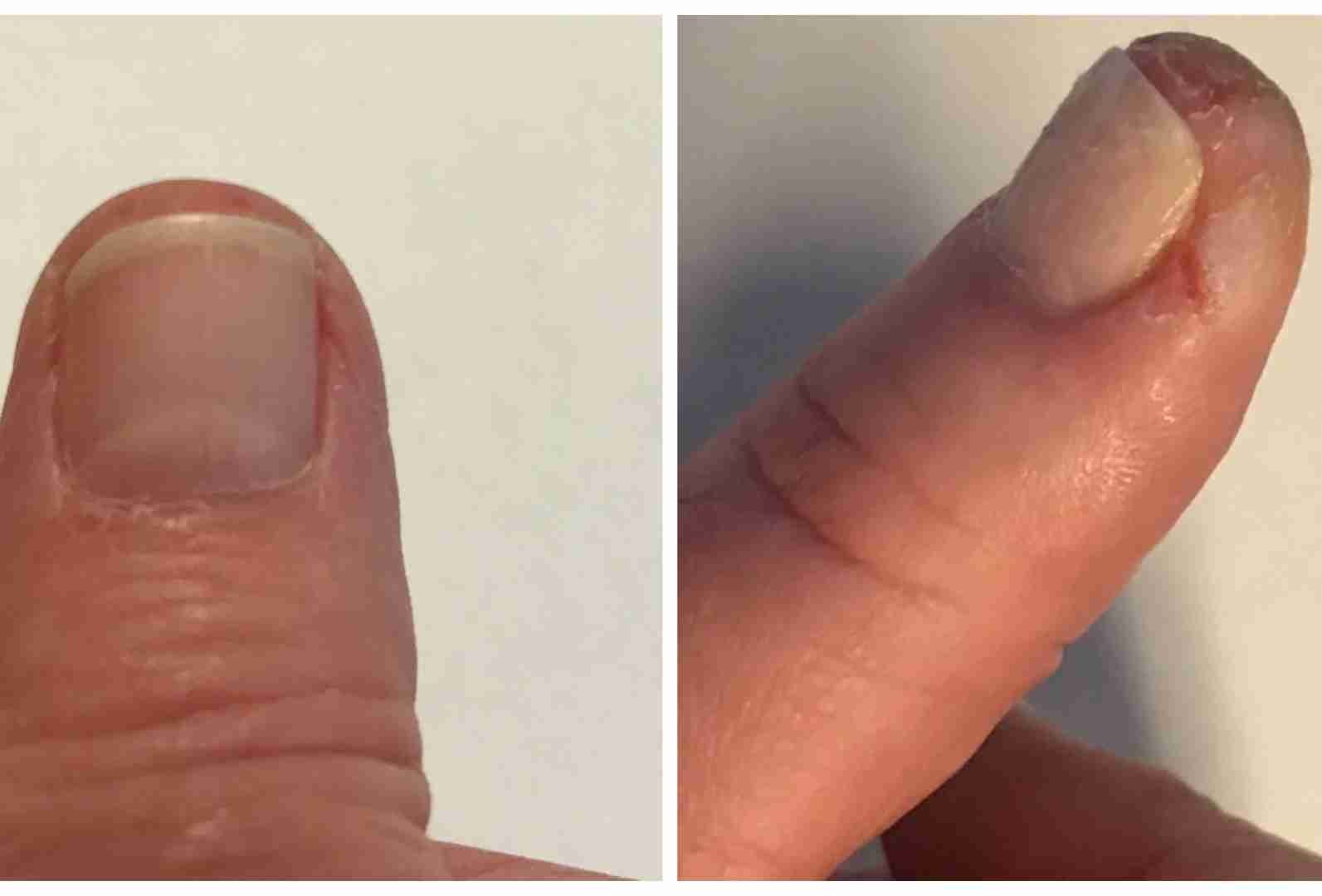 before and after splits on fingers