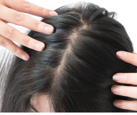 Treating women's hair loss with saw palmetto