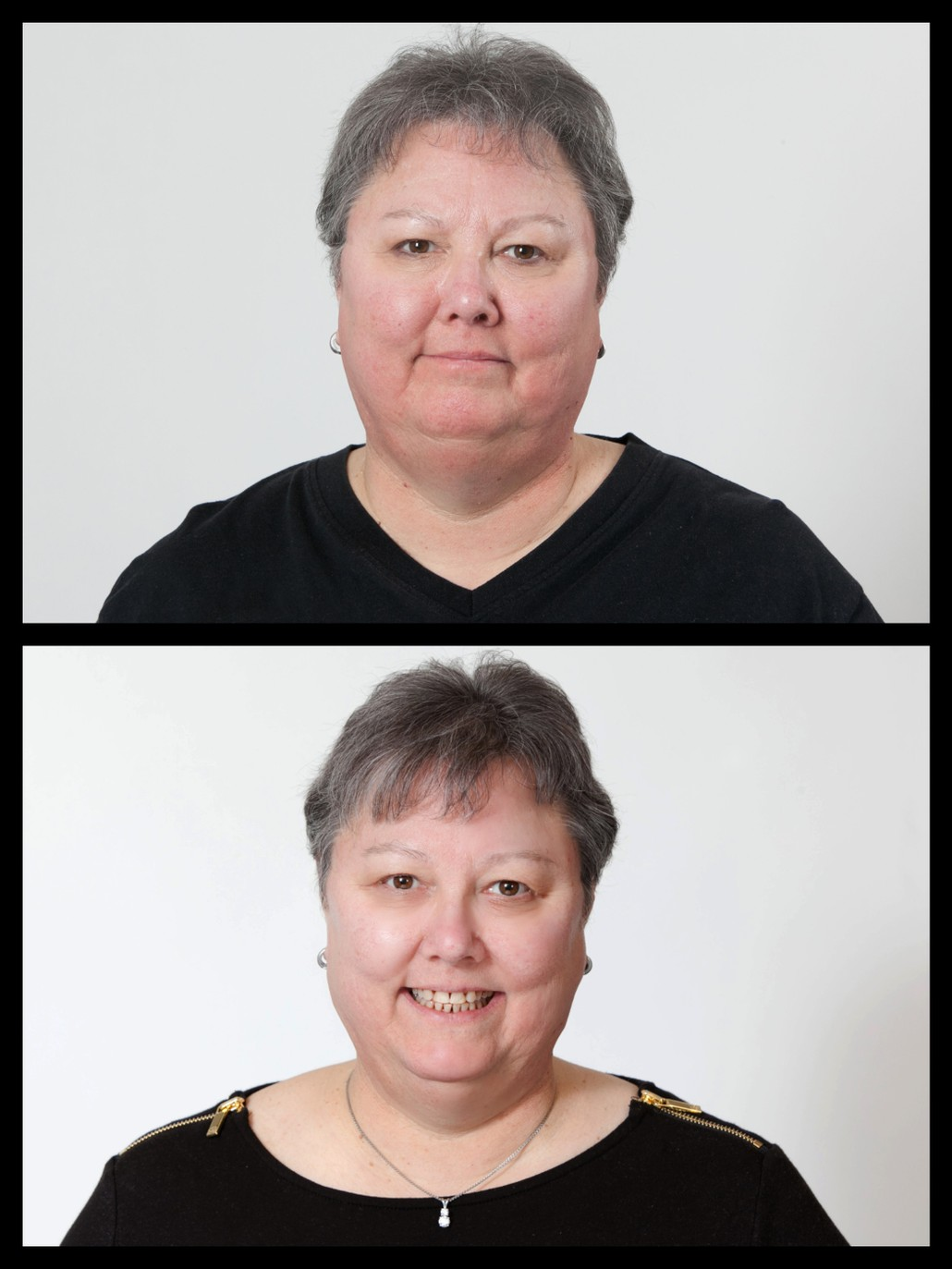 before and after results of woman