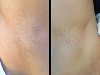 Before and After of Armpit SilkTouch