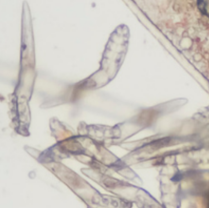 Demodex Eyelash Mites Pictures