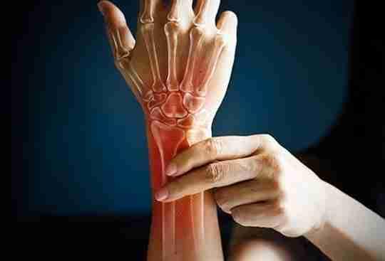 wrist arthritis person grabbing wrist x ray see through see-through hand arm