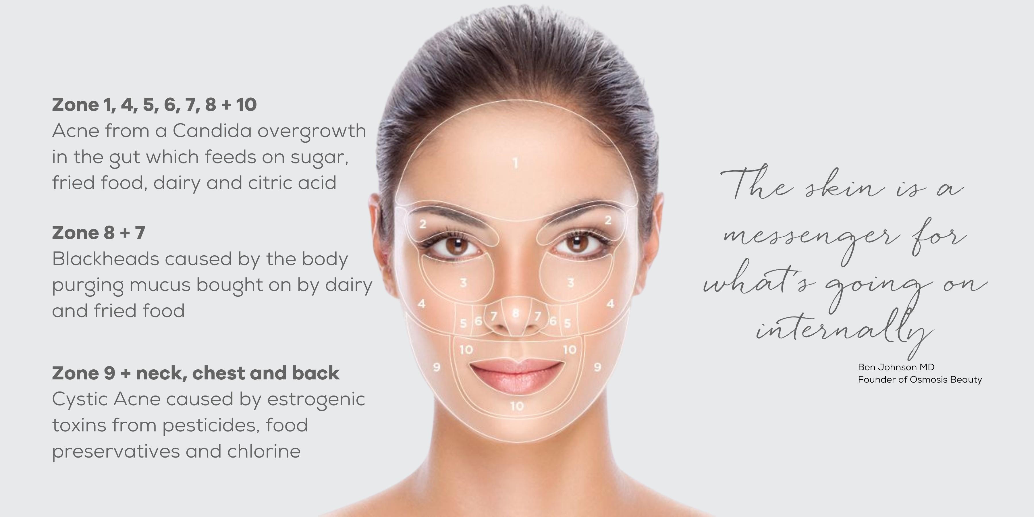 Acne Skin Map