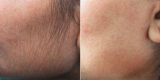 Before and after of women using IPL Laser Hair Removal SilkTouch