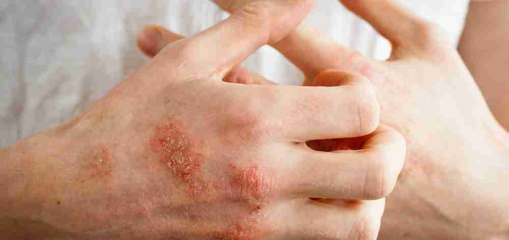 Eczema suffers have to contend with dry itchy, scaly skin, irritation swelling, redness and sensitivity.