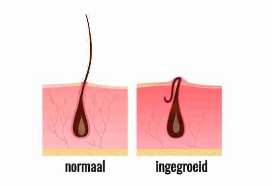 Normaal vs ingegroeide haar