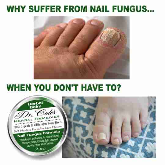 Why suffer from nail fungus when you don't have to?